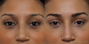 Beverly Hills Female Before and After Non-Surgical Eyelid Lift 3.1