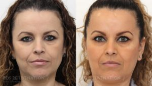 Patient 4a Botox® Before and After