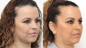Patient 4b Botox® Before and After