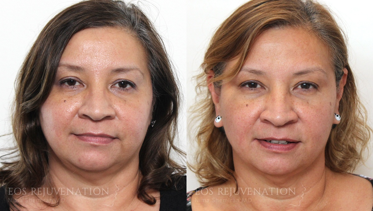 Patient 1a Botox® Before and After