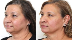 Patient 1b Botox® Before and After