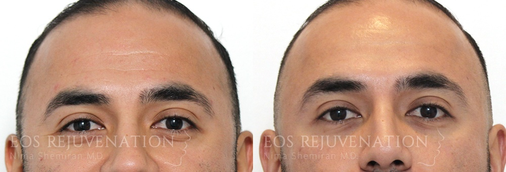 Patient 5a Botox® Before and After