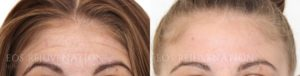 Patient 3a Botox® Before and After