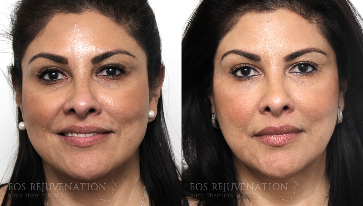 Patient 1a Cheek Augmentation Before and After