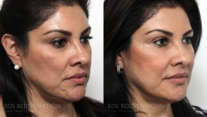 Patient 1b Cheek Augmentation Before and After