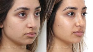 Patient 2a Cheek Augmentation Before and After