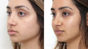 Patient 2b Cheek Augmentation Before and After