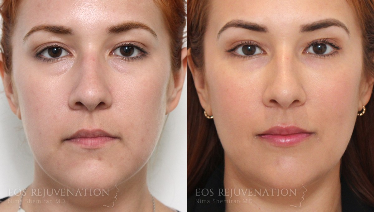 Patient 3a Cheek Augmentation Before and After