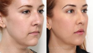 Patient 3b Cheek Augmentation Before and After