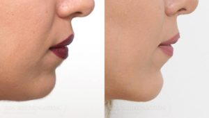 Patient 2a Chin Augmentation Before and After