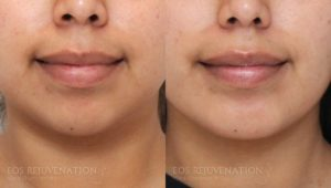 Patient 3c Chin Augmentation Before and After