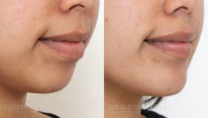 Patient 3b Chin Augmentation Before and After