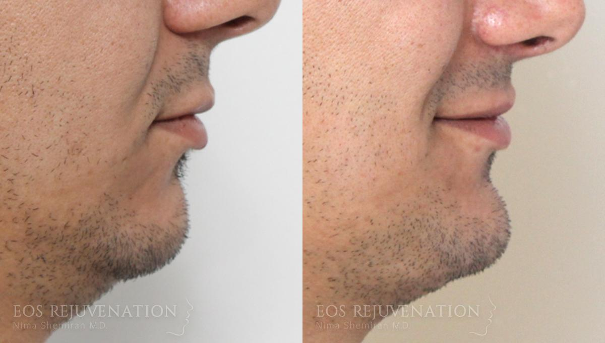 Patient 6a Chin Augmentation Before and After