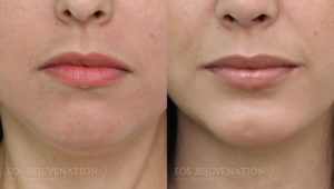 Patient 1c Chin Augmentation Before and After