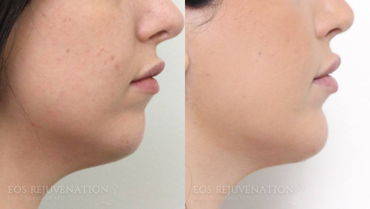 Patient 4a Chin Augmentation Before and After