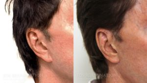 Patient 3b Earlobe Reduction Before and After