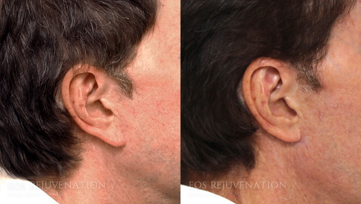 Patient 3a Earlobe Reduction Before and After