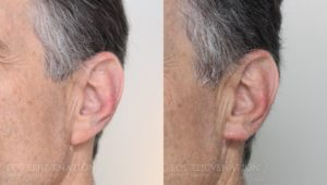 Patient 2b Earlobe Reduction Before and After