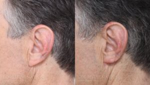 Patient 2a Earlobe Reduction Before and After