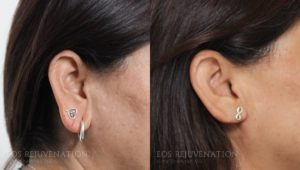 Patient 1b Earlobe Reduction Before and After