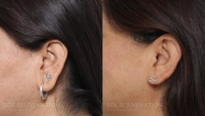 Patient 1a Earlobe Reduction Before and After