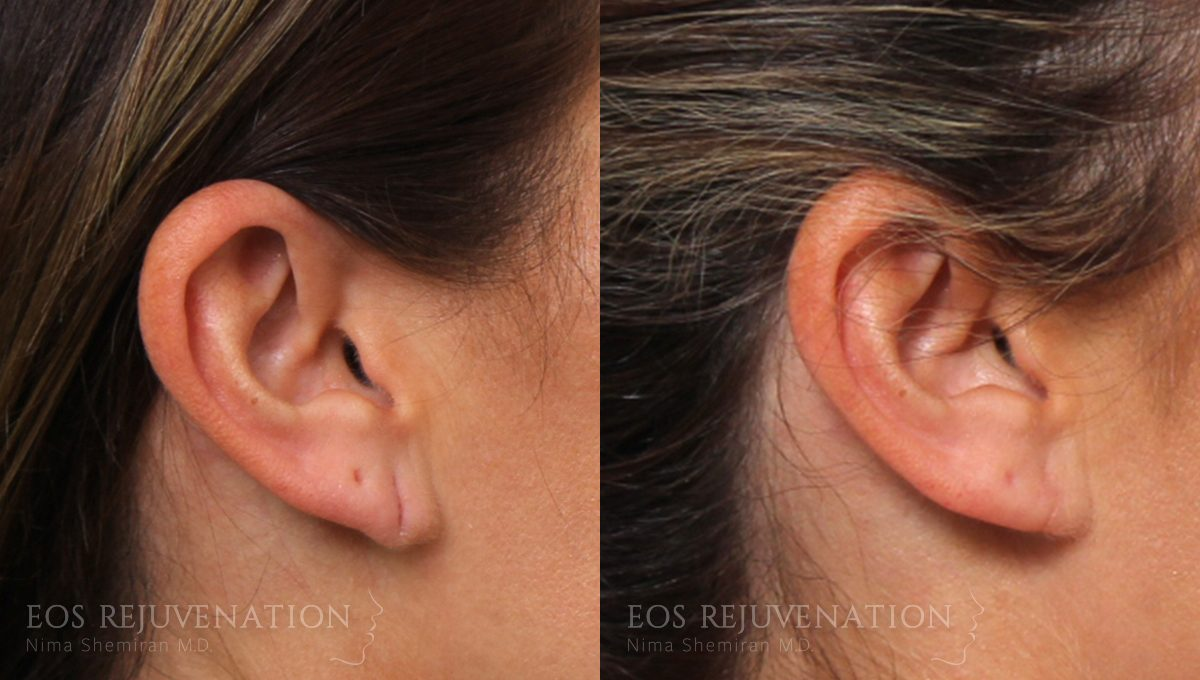 Patient 1a Earlobe Repair Before and After