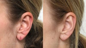 Patient 2b Earlobe Repair Before and After