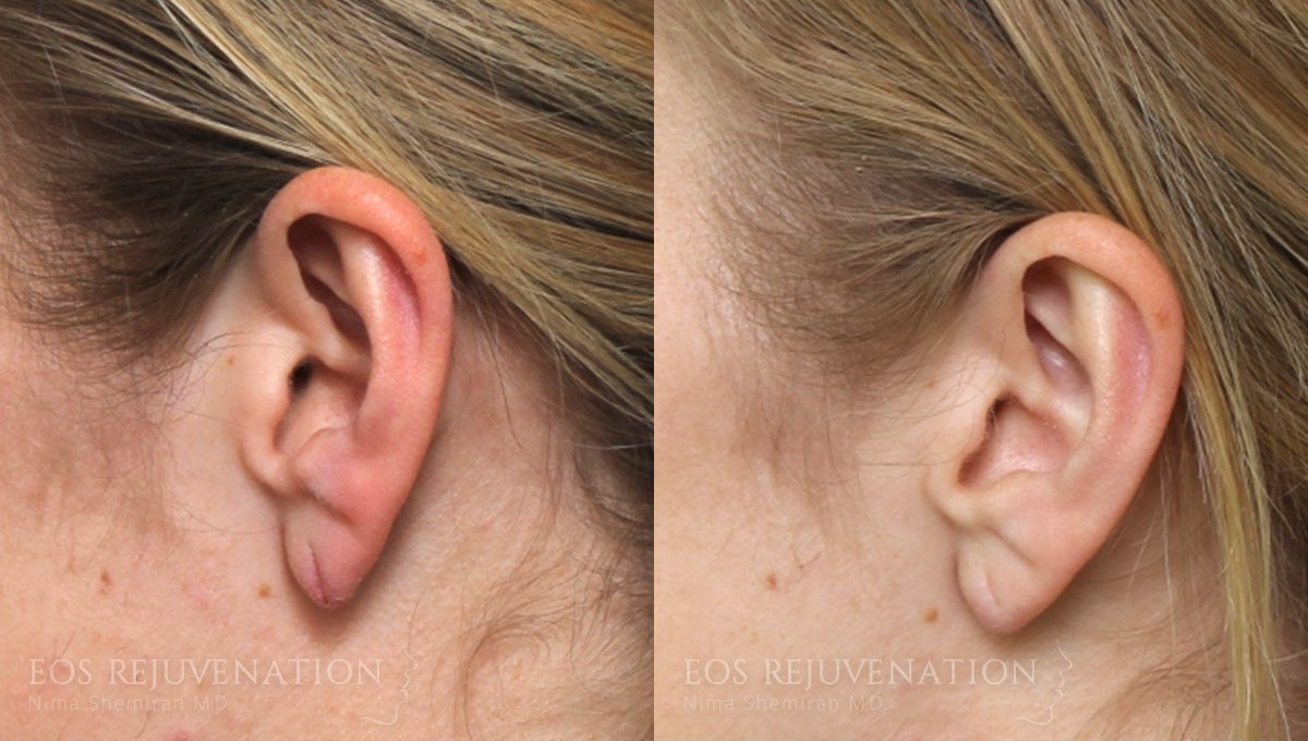 Patient 2a Earlobe Repair Before and After