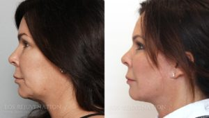 Patient 1c Facelift Before and After