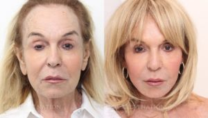 Patient 2a Facelift Before and After
