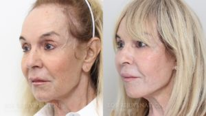Patient 2b Facelift Before and After