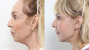 Patient 2c Facelift Before and After