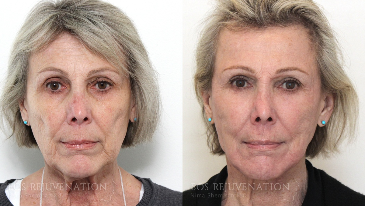 Patient 3a Facelift Before and After