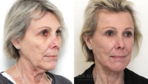 Patient 3b Facelift Before and After