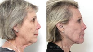 Patient 3c Facelift Before and After