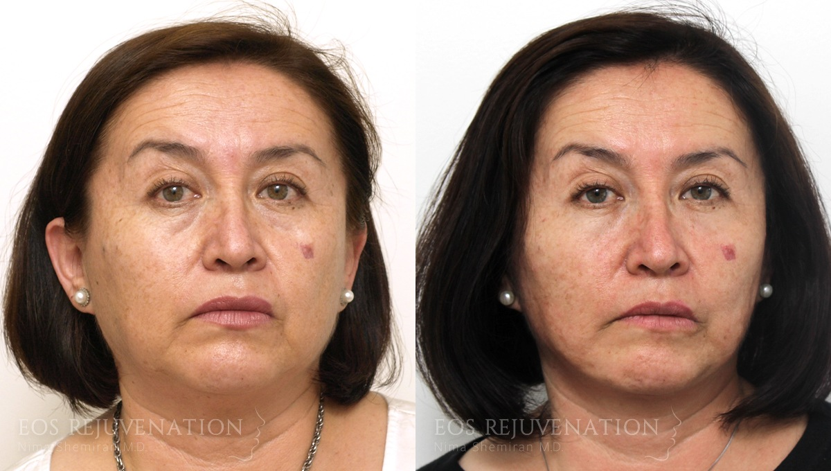 Patient 4a Facelift Before and After