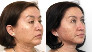 Patient 4b Facelift Before and After