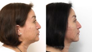 Patient 4c Facelift Before and After