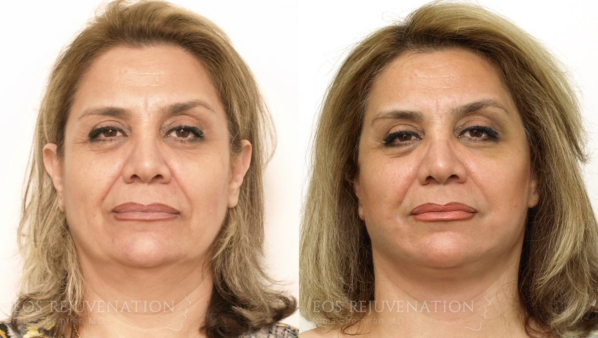 Patient 5a Facelift Before and After