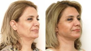 Patient 5b Facelift Before and After