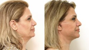 Patient 5c Facelift Before and After