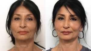 Patient 6a Facelift Before and After