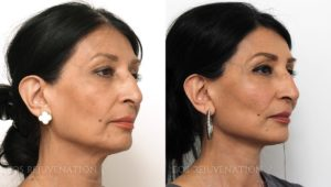 Patient 6b Facelift Before and After