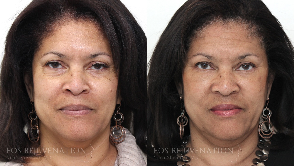 Patient 4a Fat Transfer Before and After