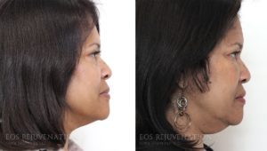 Patient 4c Fat Transfer Before and After