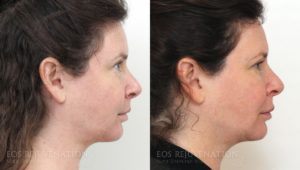 Patient 2c Fat Transfer Before and After