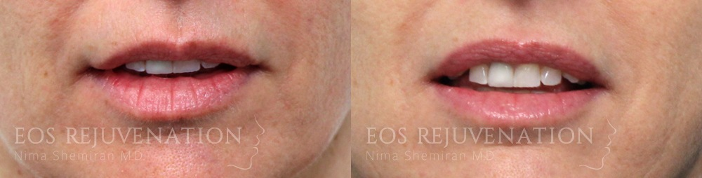 Patient 11a Lip Augmentation Before and After