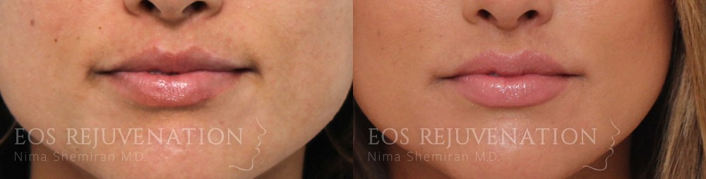 Patient 5a Lip Augmentation Before and After