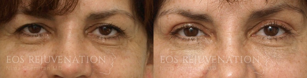 Patient 5a Lower Blepharoplasty Before and After