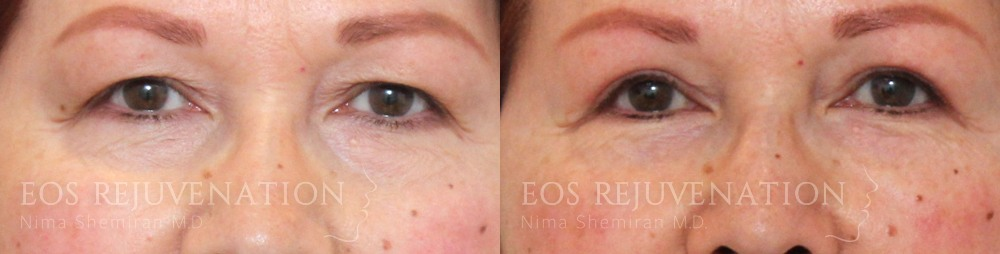 Patient 6a Lower Blepharoplasty Before and After
